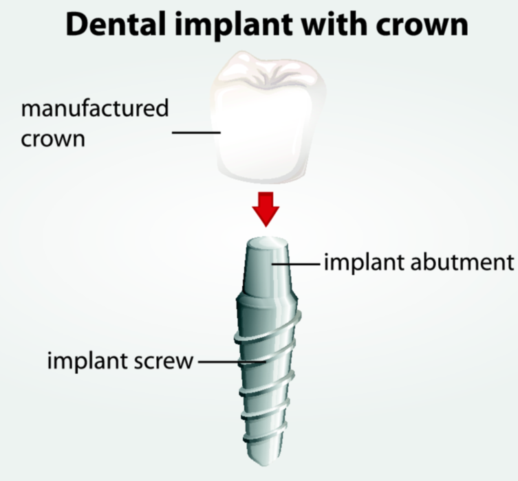 Dental Implants in Irvine CA