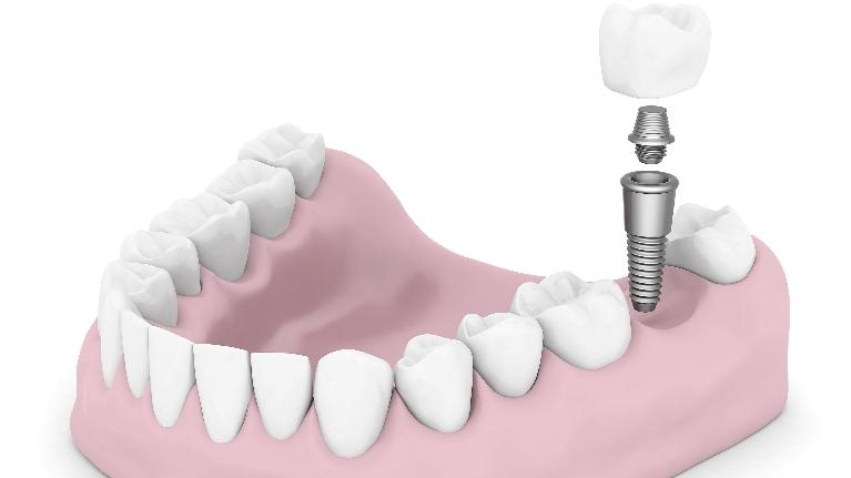 Preparing for Dental Implants | Irvine Dental