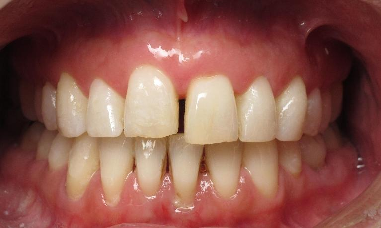 Bioclear-Chairside-Bonding-Before-Image